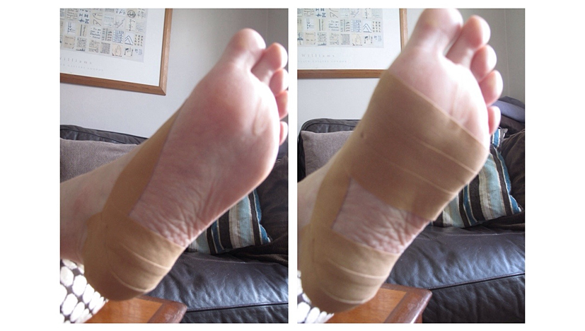 Leukotape on a foot